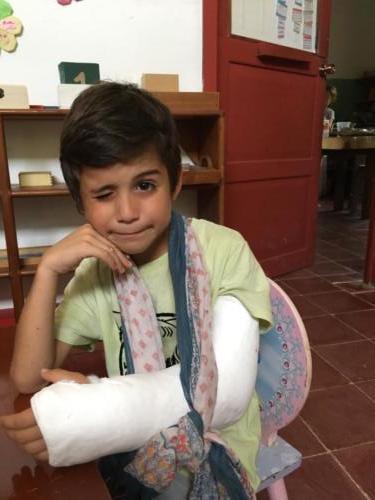 Esteban bras double fracture